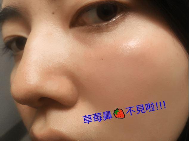 毛孔 草莓鼻 粉刺 洗臉 水煮蛋肌