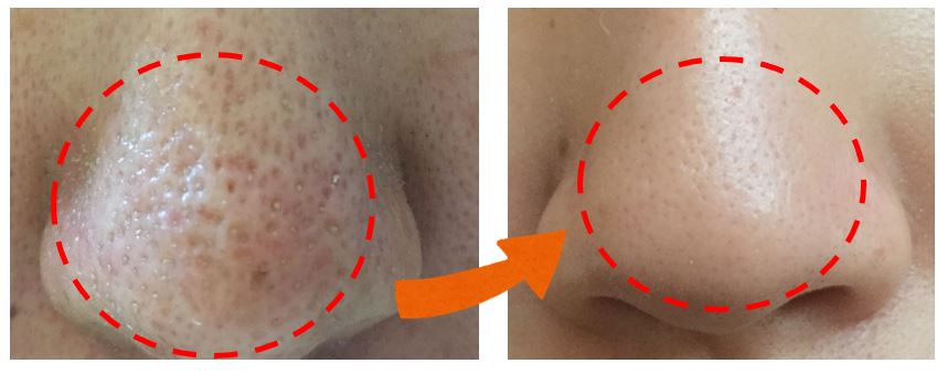 毛孔 草莓鼻 粉刺 黑頭 閉鎖型