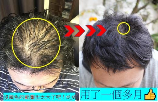 多立寶 東森 多髮寶 生髮 養髮 健髮 育髮 掉髮 CSC 落髮